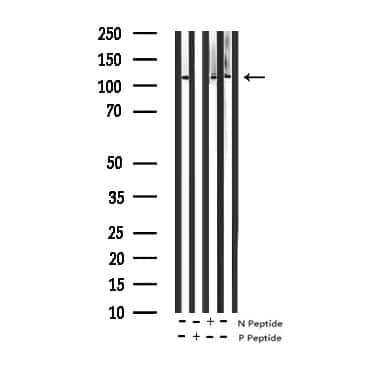 Phospho-JAK2 (Tyr221) Antibody in Western Blot (WB)