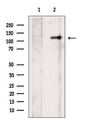 Phospho-JAK2 (Tyr931) Antibody in Western Blot (WB)
