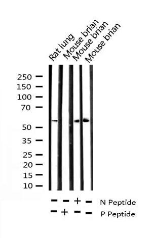 Phospho-Chk2 (Thr68) Antibody in Western Blot (WB)