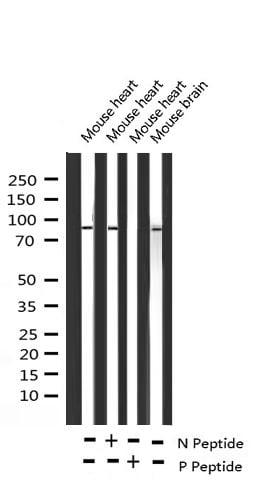 Phospho-Glucocorticoid Receptor (Ser203) Antibody in Western Blot (WB)
