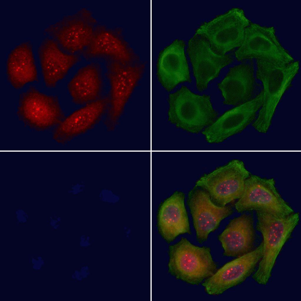 Phospho-p53 (Ser20) Antibody in Immunofluorescence (IF)