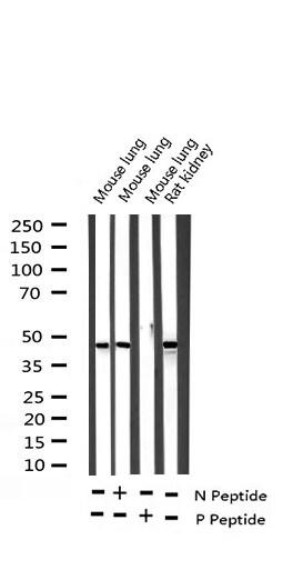Phospho-c-Jun (Ser63) Antibody in Western Blot (WB)