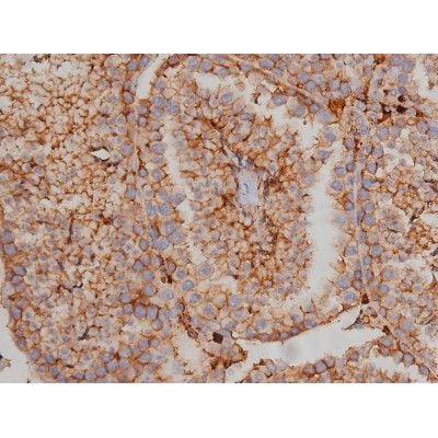 Phospho-Fyn (Tyr530) Antibody in Immunohistochemistry (Paraffin) (IHC (P))