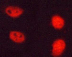 Phospho-NPM1 (Thr199) Antibody in Immunofluorescence (IF)