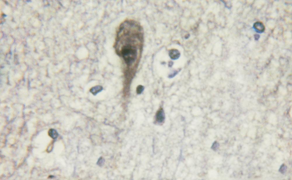 Phospho-beta-2 Adrenergic Receptor (Ser346) Antibody in Immunohistochemistry (Paraffin) (IHC (P))