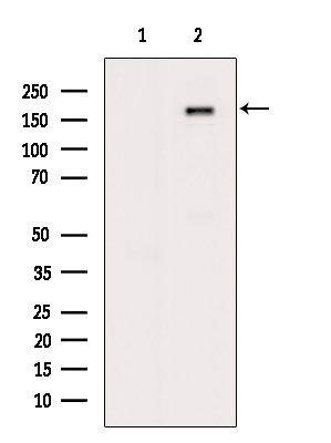 Phospho-IGF1R (Tyr1161) Antibody in Western Blot (WB)
