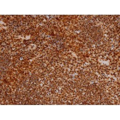 Phospho-Ezrin (Tyr353) Antibody in Immunohistochemistry (Paraffin) (IHC (P))