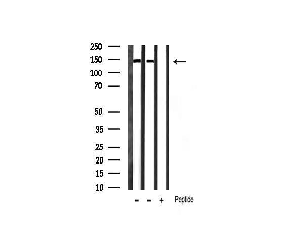 Phospho-Ezrin (Tyr353) Antibody in Western Blot (WB)