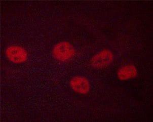 Phospho-CREB (Ser142) Antibody in Immunofluorescence (IF)