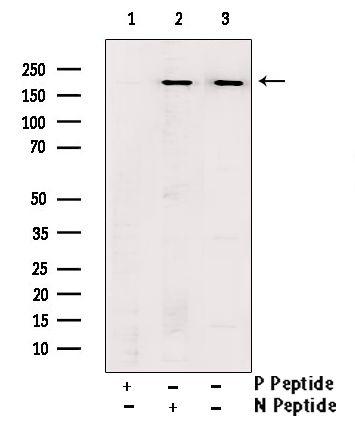 Phospho-BRCA1 (Ser1524) Antibody in Western Blot (WB)