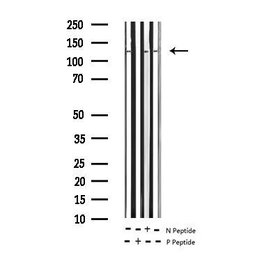Phospho-Calcium Sensing Receptor (Thr888) Antibody in Western Blot (WB)