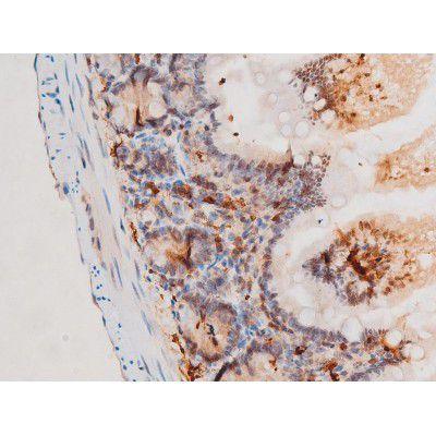 Phospho-SYK (Tyr525) Antibody in Immunohistochemistry (Paraffin) (IHC (P))