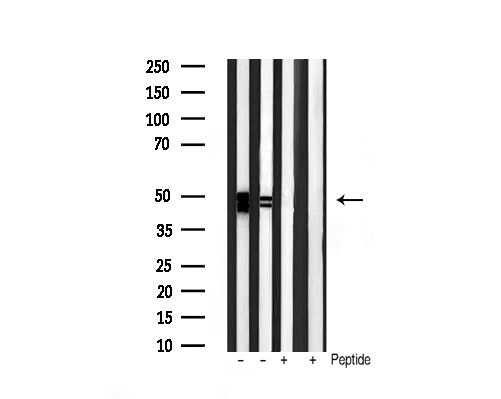 Phospho-GSK3 alpha/beta (Tyr279, Tyr216) Antibody in Western Blot (WB)