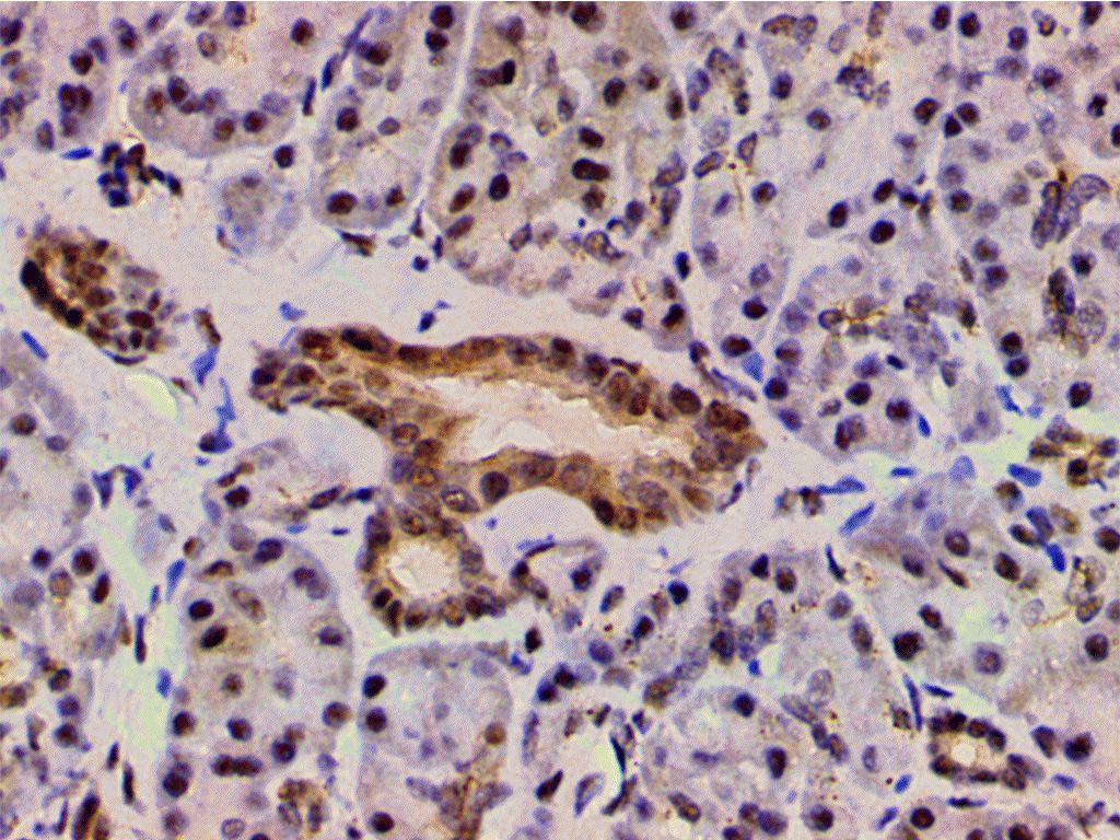 Phospho-LIMK1 (Thr508) Antibody in Immunohistochemistry (Paraffin) (IHC (P))