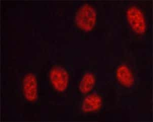 Phospho-DNA-PK (Thr2647) Antibody in Immunofluorescence (IF)