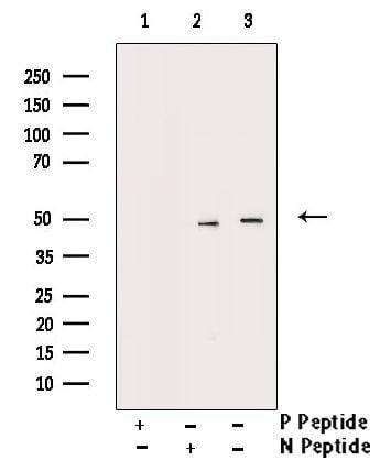 Phospho-Smad3 (Ser213) Antibody in Western Blot (WB)