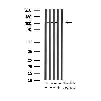 Phospho-NFkB p100 (Ser865) Antibody in Western Blot (WB)