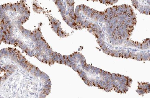 Phospho-NFkB p100 (Ser869) Antibody in Immunohistochemistry (Paraffin) (IHC (P))