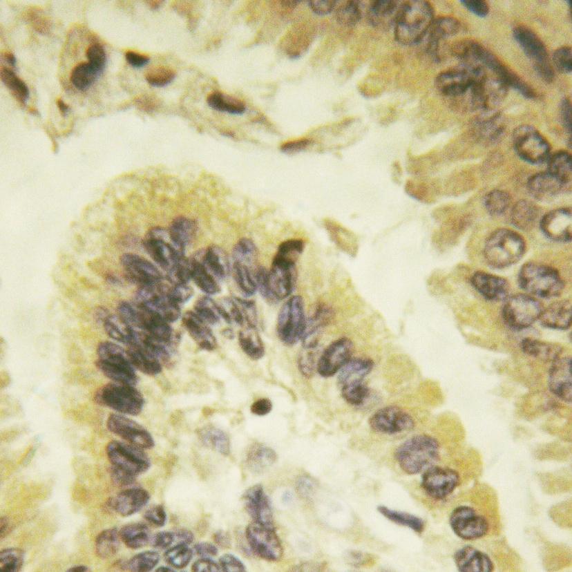 Phospho-Bcl-xL (Thr47) Antibody in Immunohistochemistry (Paraffin) (IHC (P))
