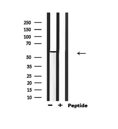 Phospho-PAK1 (Thr212) Antibody in Western Blot (WB)