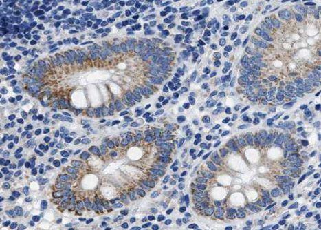 Phospho-Caspase 8 (Ser347) Antibody in Immunohistochemistry (Paraffin) (IHC (P))