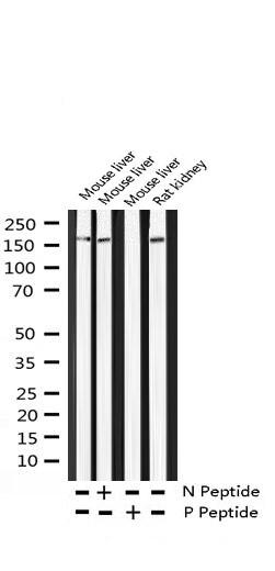 Phospho-ErbB4 (Tyr1284) Antibody in Western Blot (WB)