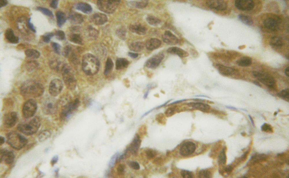 Phospho-SMAD1/SMAD5 (Ser187) Antibody in Immunohistochemistry (Paraffin) (IHC (P))