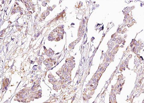 Phospho-BAD (Ser155) Antibody in Immunohistochemistry (Paraffin) (IHC (P))