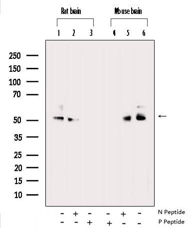 Phospho-CaMKII alpha/beta/delta (Thr305) Antibody in Western Blot (WB)