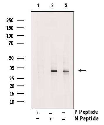 Phospho-SLUG (Ser104) Antibody in Western Blot (WB)