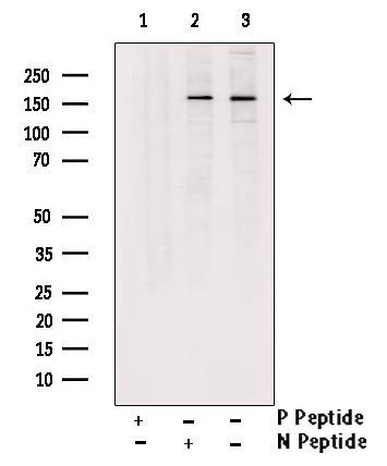 Phospho-TSC1 (Ser505) Antibody in Western Blot (WB)