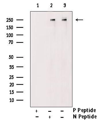 Phospho-CAD (Ser1859) Antibody in Western Blot (WB)