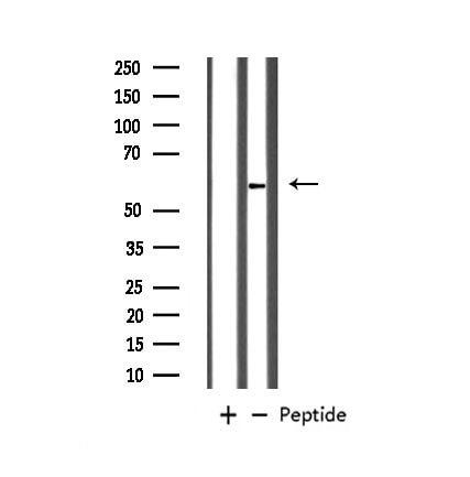 GABRB1 Antibody in Western Blot (WB)