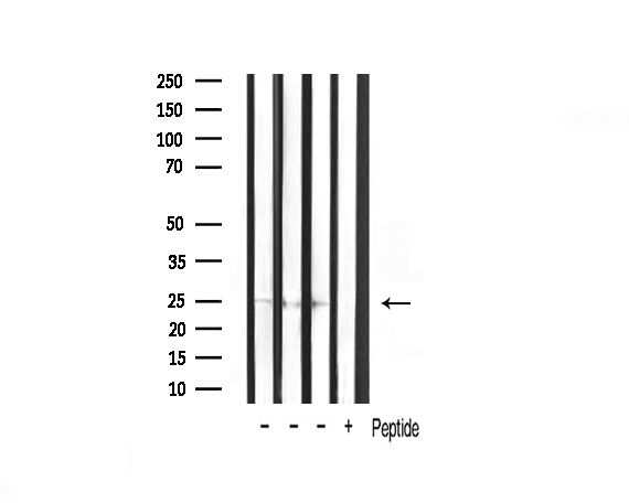 TIMP2 Antibody in Western Blot (WB)