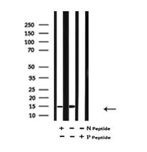 Phospho-FABP7 (Thr117) Antibody in Western Blot (WB)