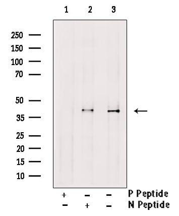 Phospho-CTGF (Ser118) Antibody in Western Blot (WB)
