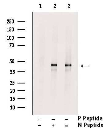 Phospho-KISS1R (Ser368) Antibody in Western Blot (WB)