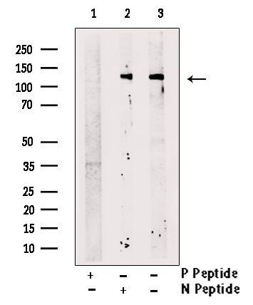 Phospho-ZEB1 (Ser887) Antibody in Western Blot (WB)