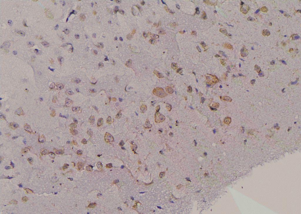 Phospho-FMRP (Ser500) Antibody in Immunohistochemistry (Paraffin) (IHC (P))