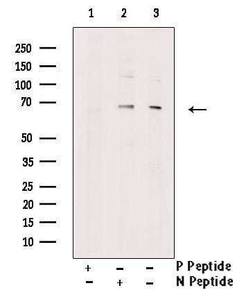 Phospho-PINK1 (Ser228) Antibody in Western Blot (WB)