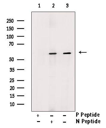 Phospho-DOK2 (Tyr402) Antibody in Western Blot (WB)