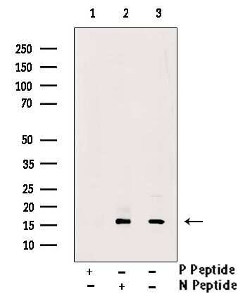 Phospho-VAMP4 (Ser88) Antibody in Western Blot (WB)