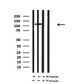 Phospho-ULK1 (Thr1046) Antibody in Western Blot (WB)