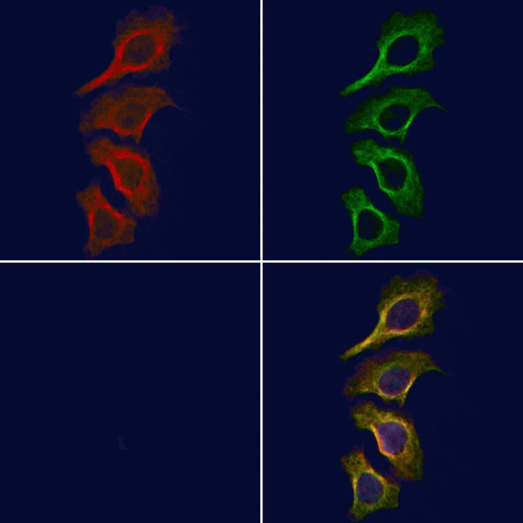 Phospho-JAK1 (Tyr1125) Antibody in Immunofluorescence (IF)