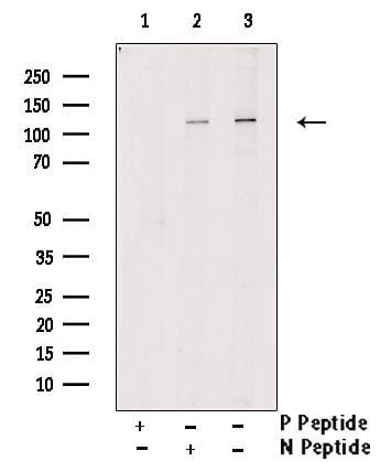 Phospho-JAK1 (Tyr1125) Antibody in Western Blot (WB)