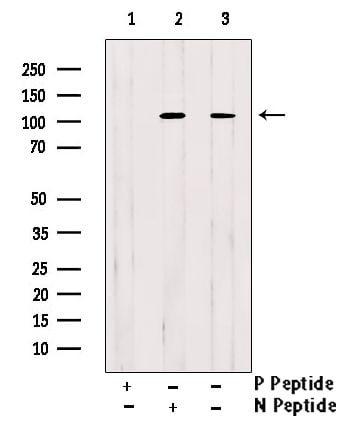 Phospho-EphA2 (Tyr588) Antibody in Western Blot (WB)