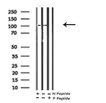 Phospho-EphA2 (Ser901) Antibody in Western Blot (WB)