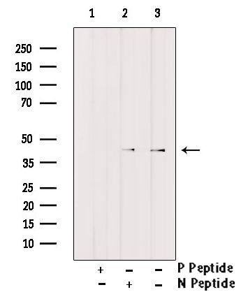 Phospho-C/EBP alpha (Thr222) Antibody in Western Blot (WB)