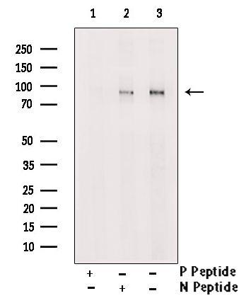 Phospho-RSK2 (Thr577) Antibody in Western Blot (WB)