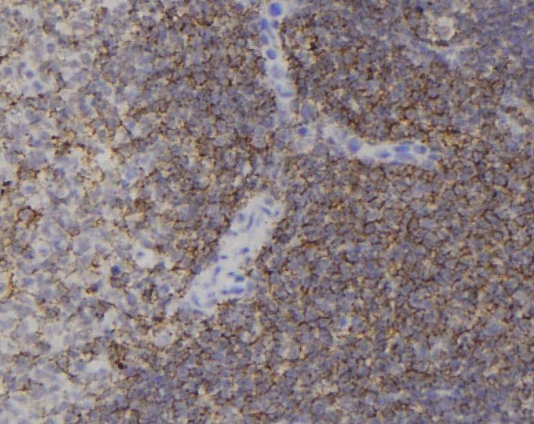 Phospho-Cdc42 (Tyr64) Antibody in Immunohistochemistry (Paraffin) (IHC (P))
